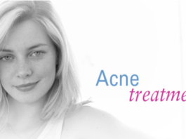 adult acne treatment