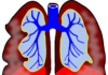 Asthma Natural Remedies